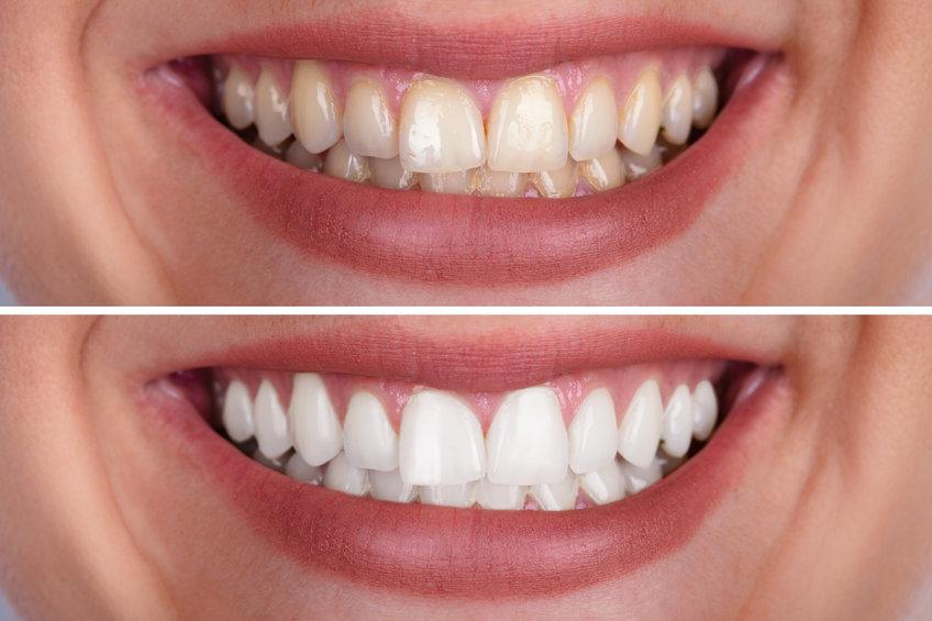 Essayez le gel de blanchiment dentaire